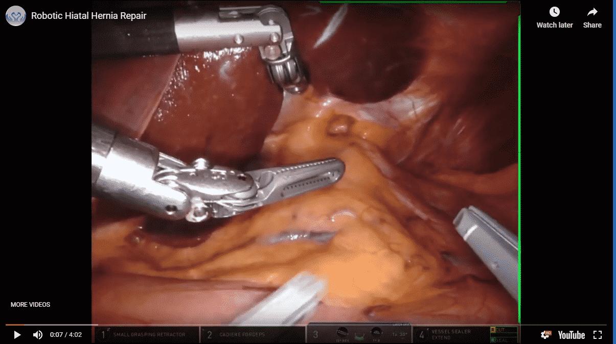 Hernia - Surgical Healing Arts Center